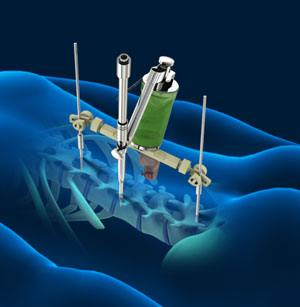 spine-robotic-surgery